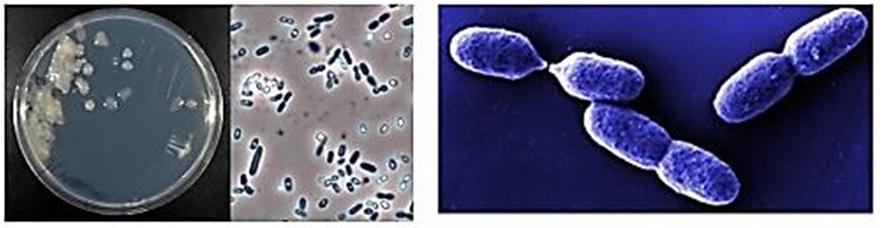 Azotobacter vinelandii